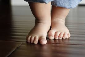 Child feet foot Podiatry Podiatrist gait Bromley Chiropody Chiropodist